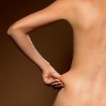 Woman pinching skin